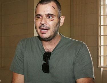 Ricardo Gama quando recebeu alta do hospital, depois de se recuperar do atentado que sofreu