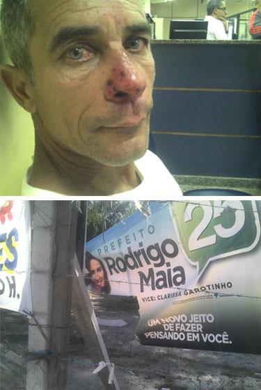 Cabo eleitoral do DEM espancado; abaixo uma das placas destruídas pelo pessoal de Paes e do vereador Guaraná