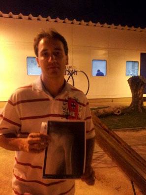 Márcio Garcia mostra a radiografia na porta da UPA